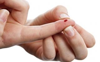 Приметы о пальцах: прищемить, уколоть, порезать