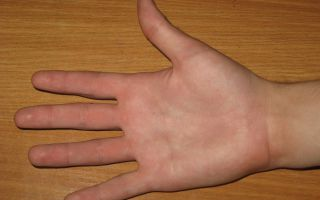 Что означает родинка на ладони или руке