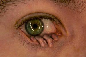к чему чешется левый глаз приметы