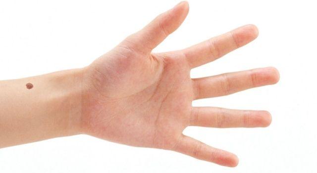 родинка на ладони правой руки значение
