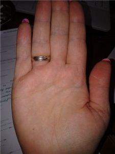 что означает родинка на пальце левой руки